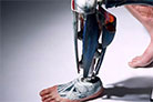 Quick fitting of prosthetic sockets for above knee amputees - (QuickFit)