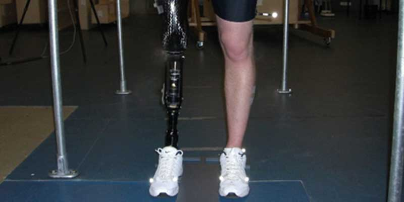QuickFit - quick fitting of prosthetic sockets for above knee amputee.